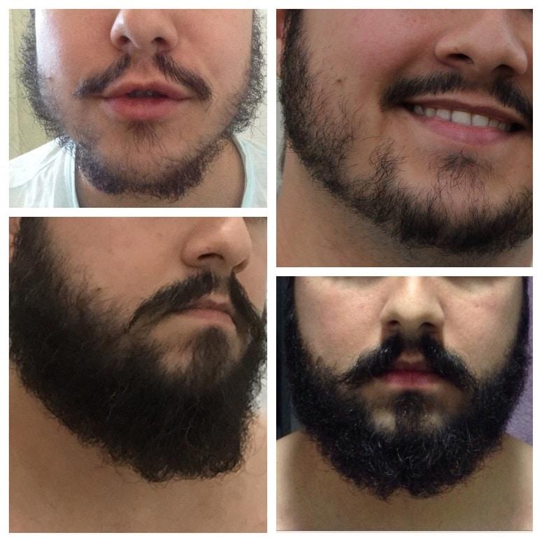 Minoxidil barba antes e depois do uso